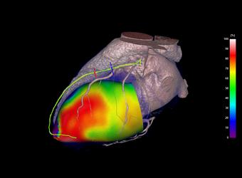 CT Cardiac LSA