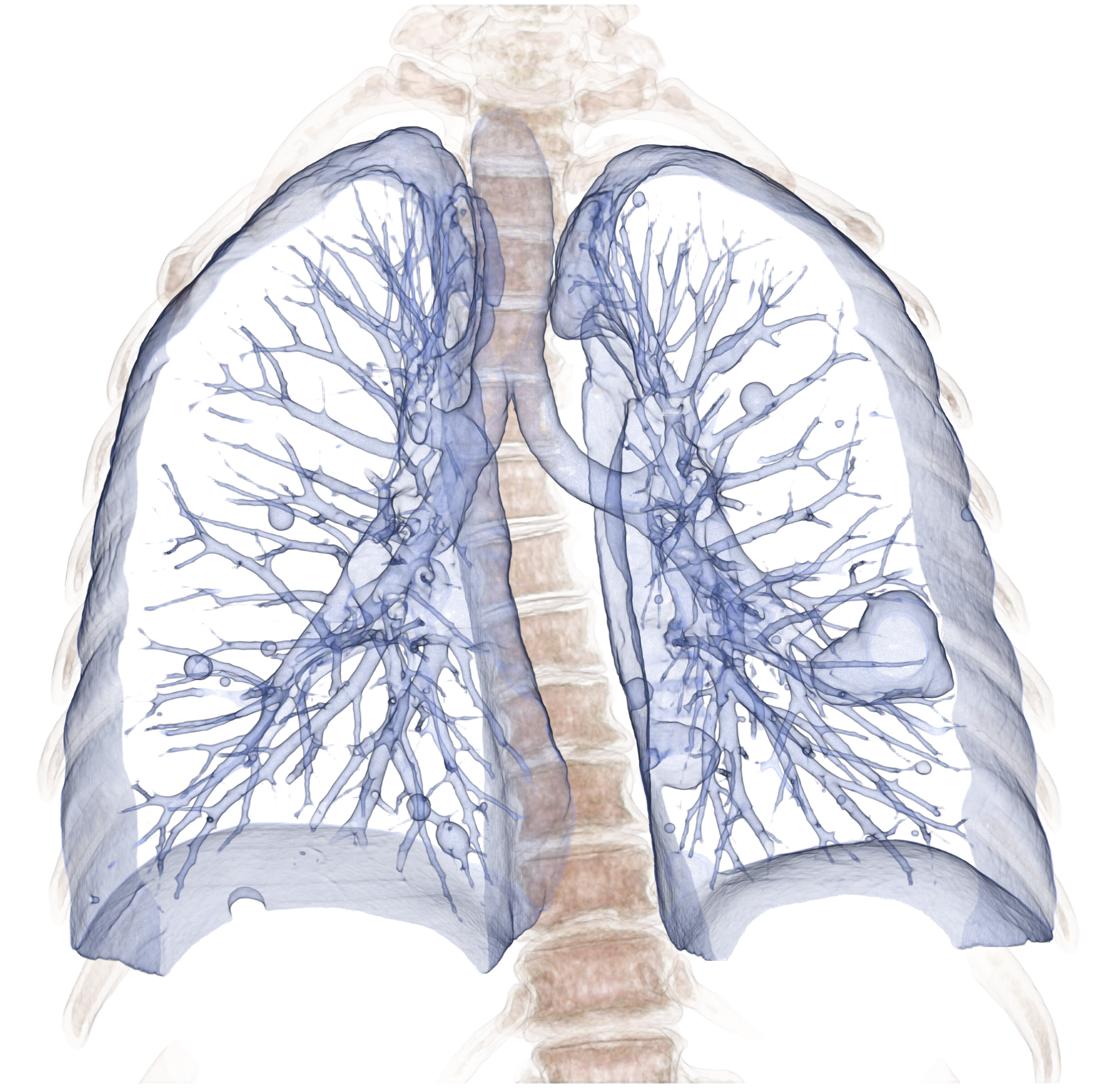 1_Lung