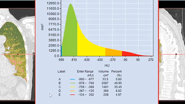 Labeling Volume Histogram_TeraRecon Intuition_Whats New P7
