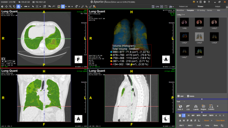 TeraRecon Lung Density Analysis II workflow_Covid19