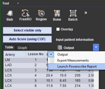 TeraRecon Reporting Tool Integration for Calcium Score