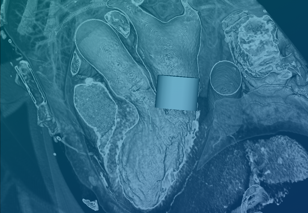 TeraRecon-Mitral Valve (TMVR) Workflow Package - Background Image (3)