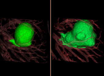 Lung Segmentation Findings Viewer with Advanced Measurement Export