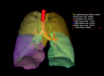 Lung Segmentation Select Study and Load Workflow