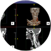 ct head and neck