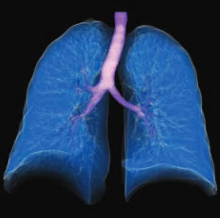 lung segmentation-1
