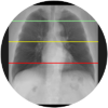 lung segmentation-3