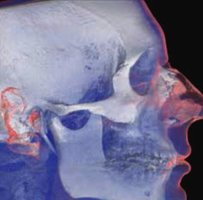maxillo facial