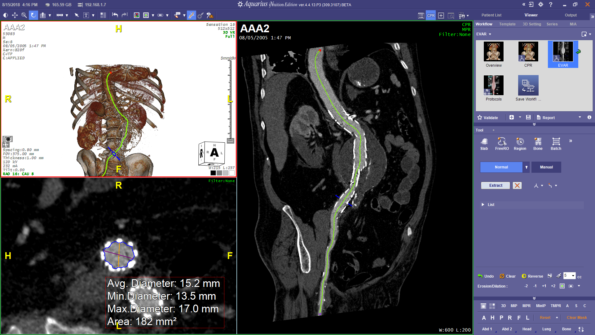 CPR and Axial Renderings