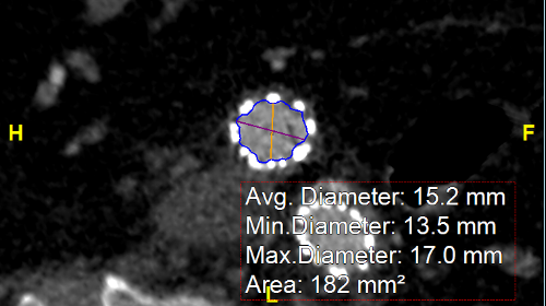 Diameter vs Distance and Cross-sectional Views-564362-edited