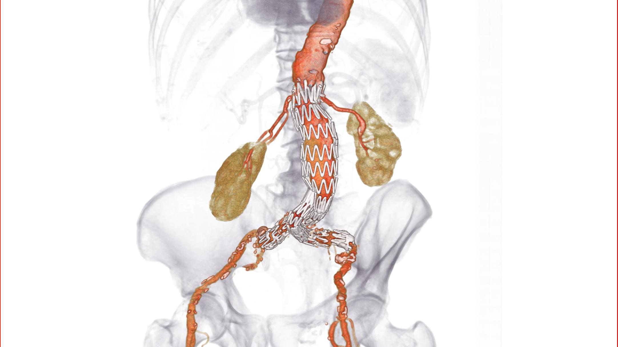 EVAR stent planning-417734-edited