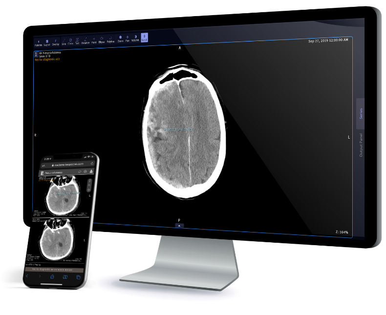 Neuro Assess Laptop and Phone Image-1