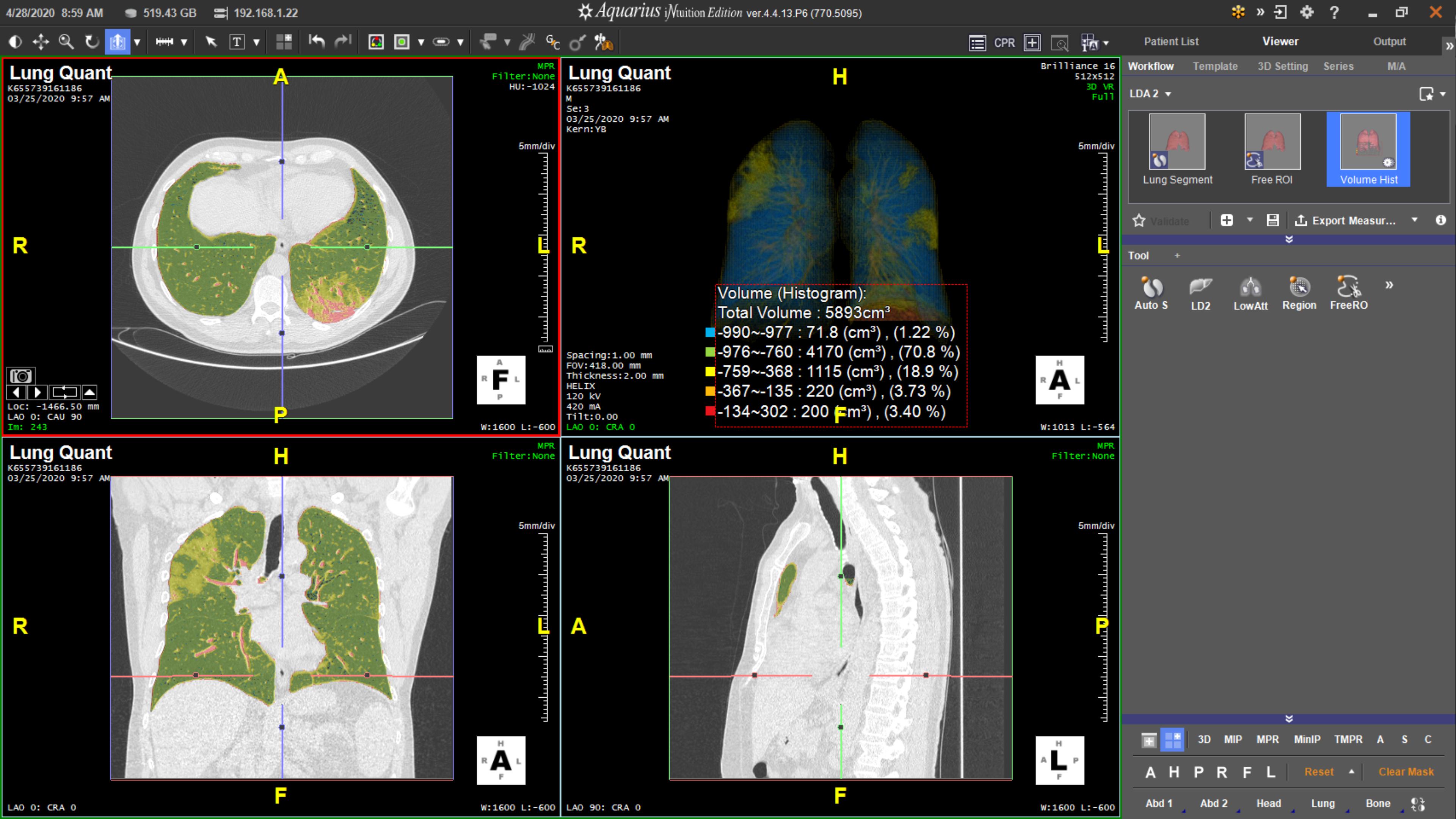 TeraReconAnnounces Emergency Lung AI SuiteandIntuitionUpgrade