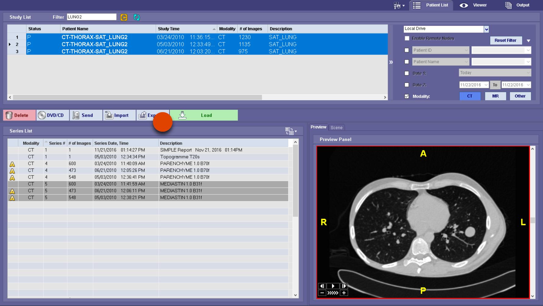 lung segmentation-2